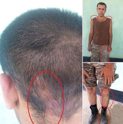 Ուշադիր նայեք. ադրբեջանական կողմի հրապարակած նկարները բոլորովին այլ բան են փաստում